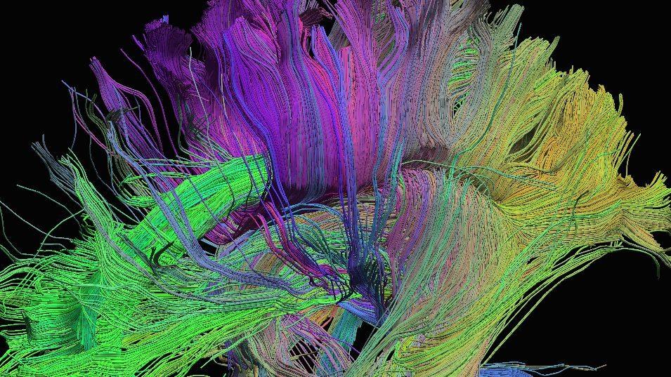 immagine di neuroimaging