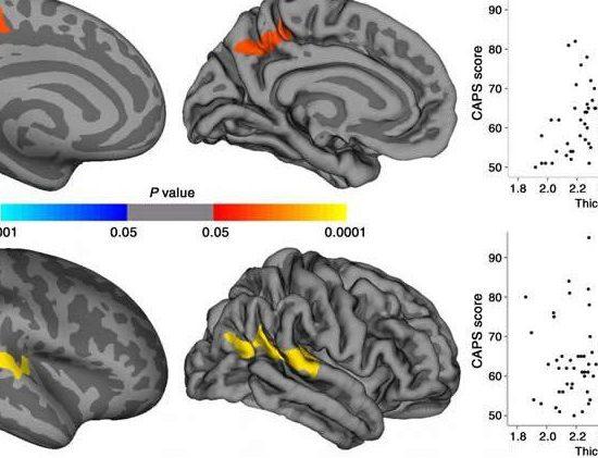 differnze cervelli