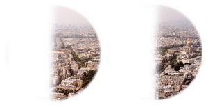 Parigi vista con emianopsia omonima sinistra