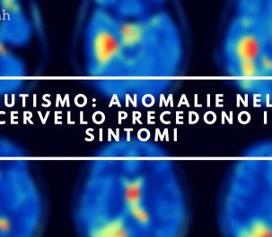 autismo anomalie cervello